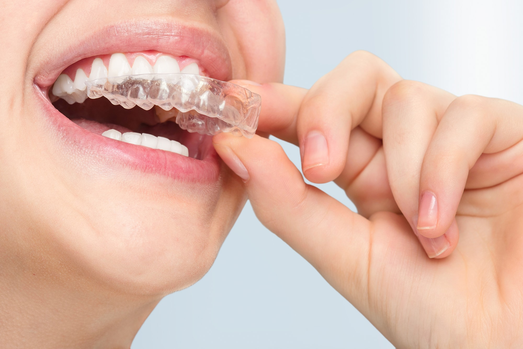 Welcome to Total Orthodontics's website.